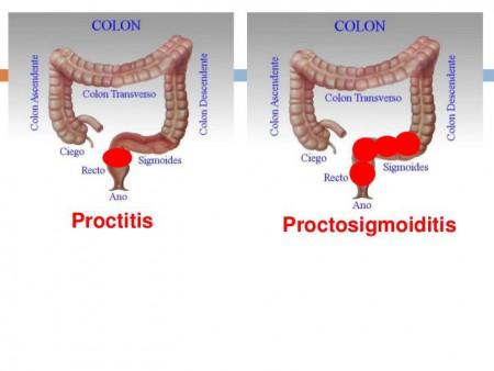Как выглядит проктосигмоидит