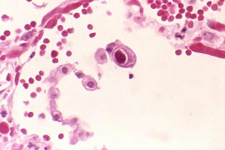 Цитомегаловирус