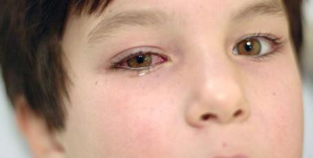 Бактериальный конъюнктивит у детей