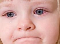 Вирусный конъюнктивит у детей
