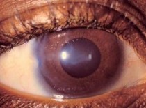Ювенильная глаукома