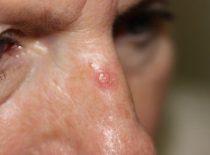 Базалиома кожи лица и носа