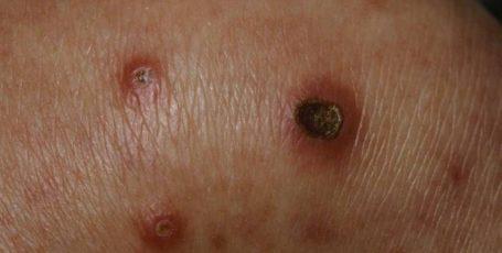 Вирусные дерматозы