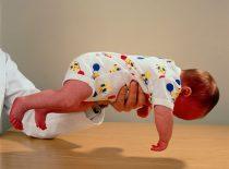 Мышечная гипотония у детей