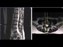 Протрузии дисков пояснично крестцового отдела позвоночника