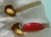 Лечение грыжи позвоночника по методу бубновского