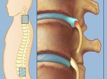 Радикулопатия пояснично крестцового отдела позвоночника