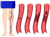 Окклюзивный и неокклюзивный тромбоз