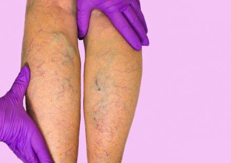 Мази для лечения тромбофлебита